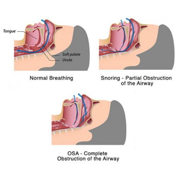 sleep-apnoea-breathing